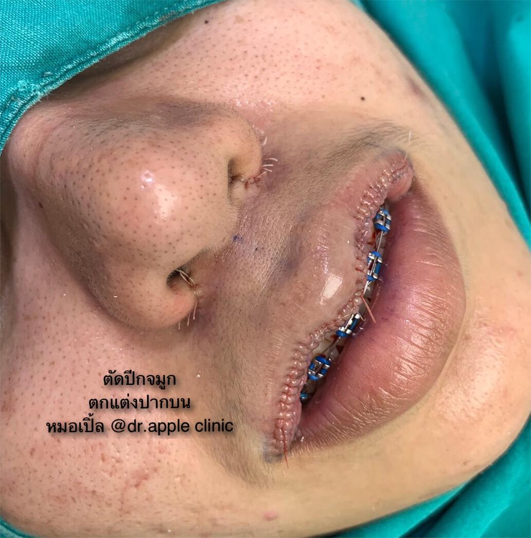 ตัดปีกจมูก และ ตกแต่งปากบน, คลินิคศัลยกรรมความงาม โดย นายแพทย์ พลศักดิ์ วรไกร (หมอเปิ้ล)