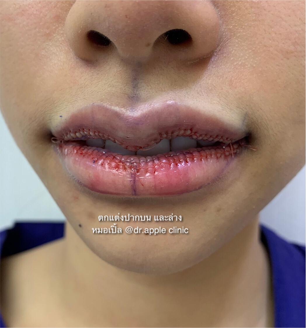 เสริมลุคสวยด้วยปากกระจับเซเลป, คลินิคศัลยกรรมความงาม โดย นายแพทย์ พลศักดิ์ วรไกร (หมอเปิ้ล)