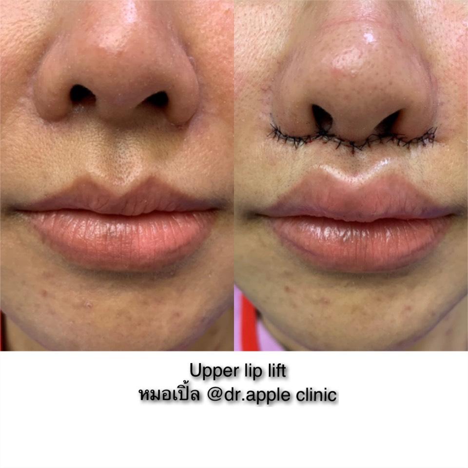 Upper Lip Lift Surgery 💋, คลินิคศัลยกรรมความงาม โดย นายแพทย์ พลศักดิ์ วรไกร (หมอเปิ้ล)